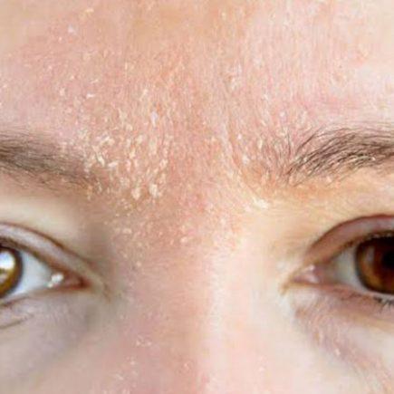 cara-mengatasi-kulit-kering-di-wajah